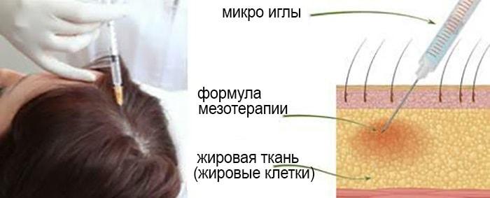 Инъекции от облысения у мужчин