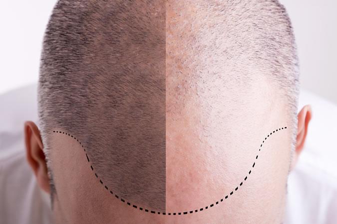 трансплантация волос для мужчин